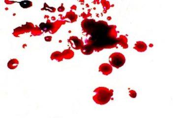 Indovinello della stanza e dell'omicidio. Ragionamento e soluzione